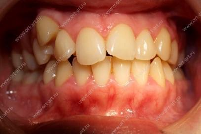 Односторонняя деформация зубного ряда