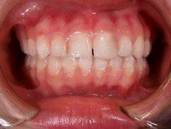 Результаты лечения: от мамы Пациентки П. - фотография после лечения
