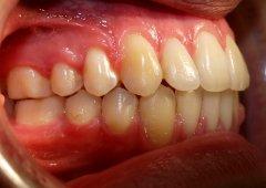 Результаты лечения: Павел Еремин - фотография после лечения
