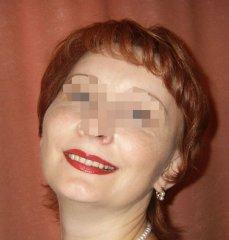 Результаты лечения: Мария Кочетова - фотография после лечения