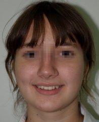 Результаты лечения: Пациентка А. - фотография до лечения