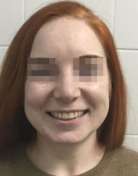 Результаты лечения: Пациентка Е. - фотография после лечения
