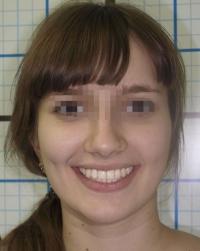Результаты лечения: Пациентка А. - фотография после лечения