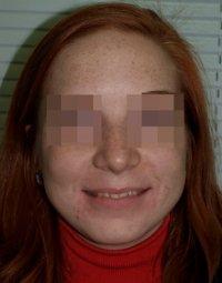 Результаты лечения: Пациентка Е. - фотография до лечения